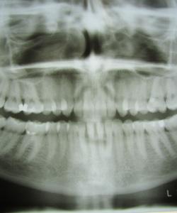 Zahn-Organ-Beziehung