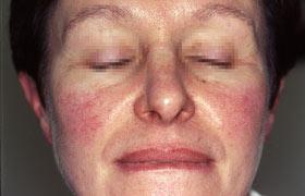 Rosacea: Symptome, Ursachen, Tipps