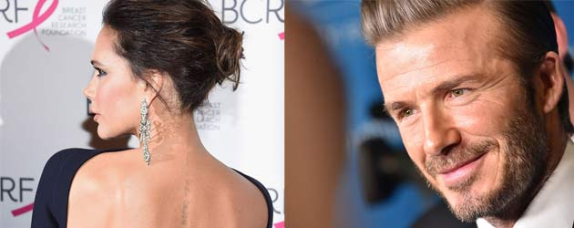 Vicoria Beckham lässt Liebes-Tattoo entfernen